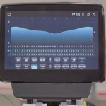 Camera 360 cho Mazda 2 2020 tính năng siêu Việt  trên xe hơi || Chungauto_0